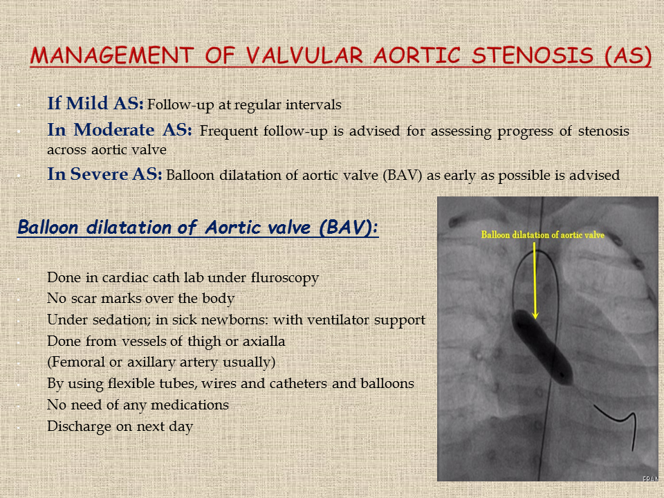 Management of valvular aortic stenosis