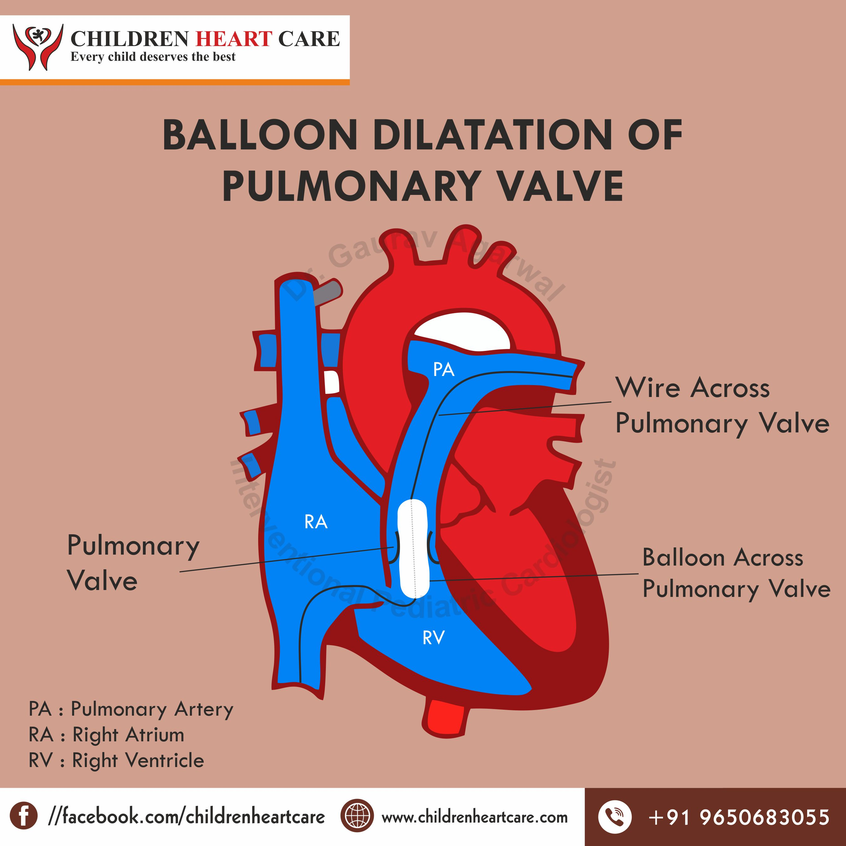 BALLOON DILATATION OF PULMONARY VALVE