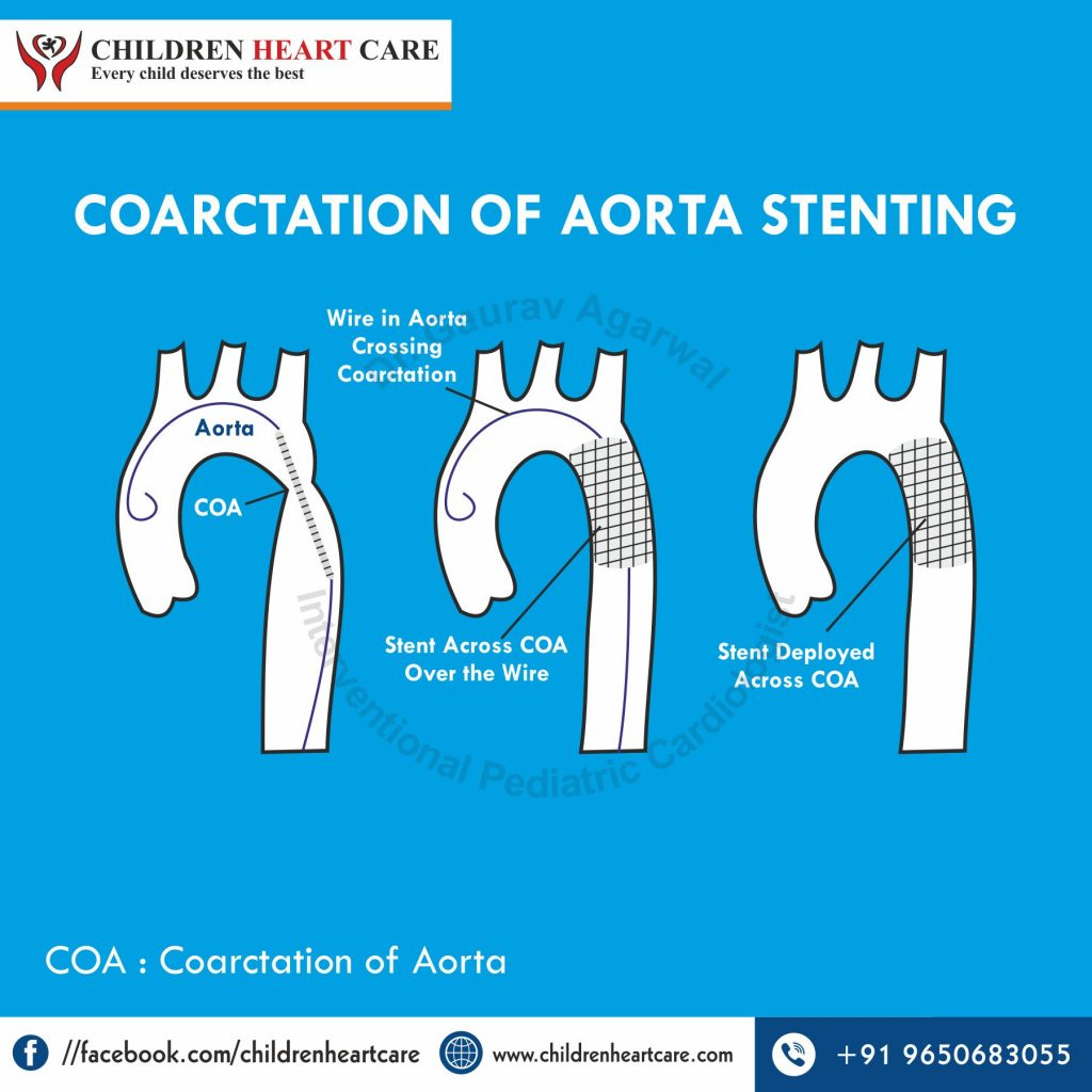 COARCTATION OF AORTA STENTING