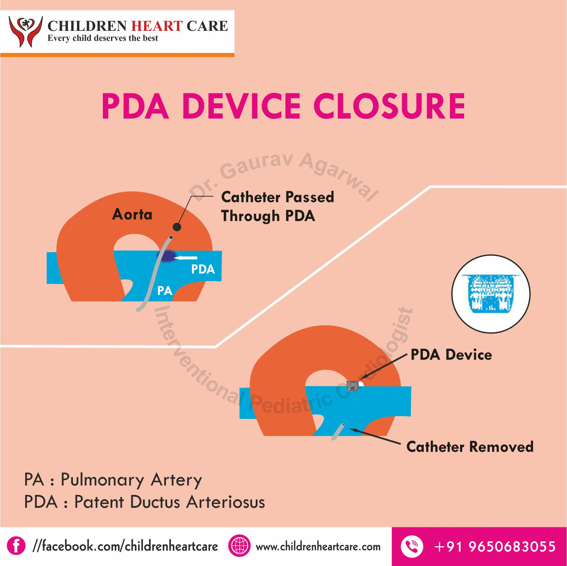 PDA DEVICE CLOSURE