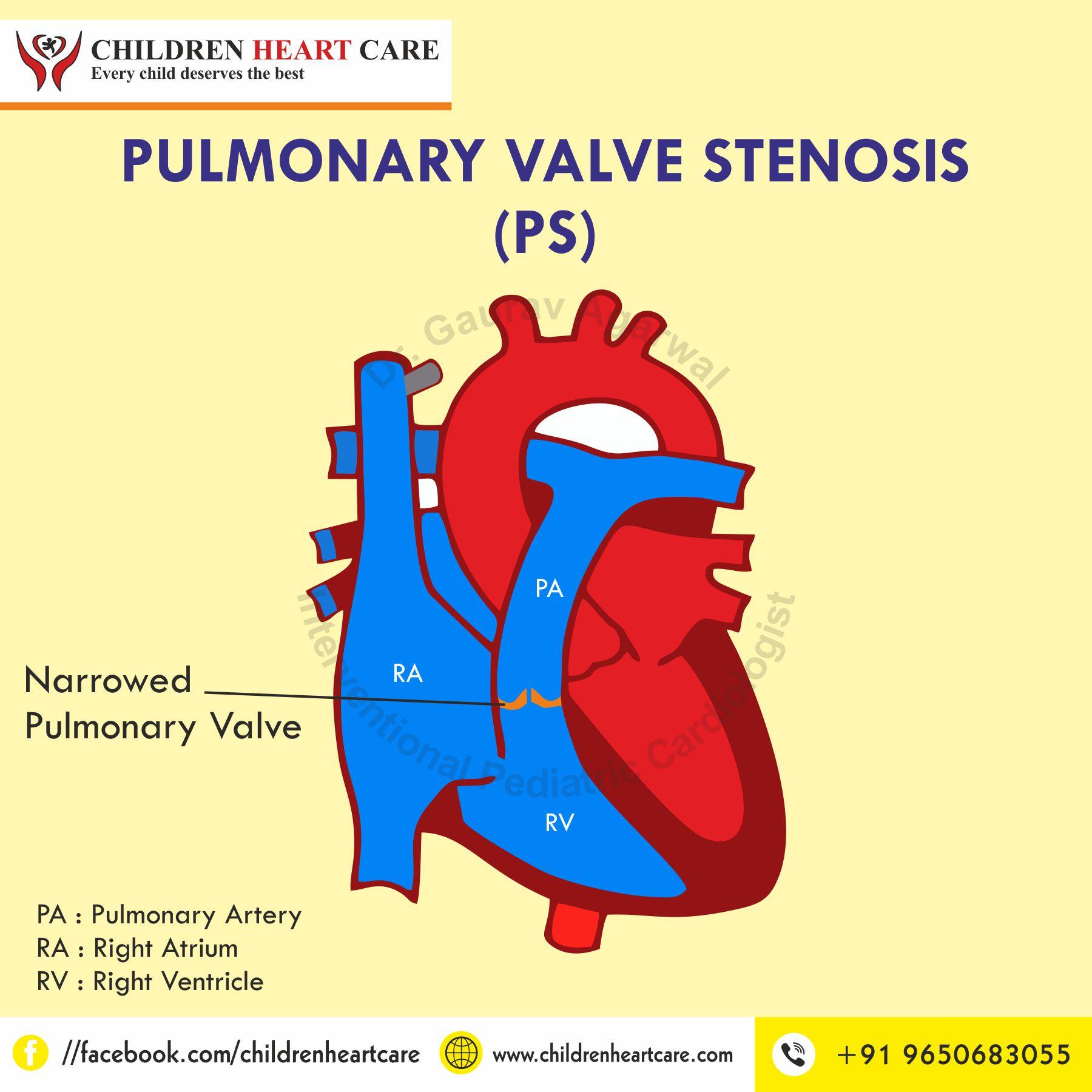 PULMONARY VALVE STENOSIS (PS)